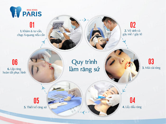 Răng sứ thẩm mỹ CT 5 chiều - Sức mạnh phục hình răng Hiệu Quả 4