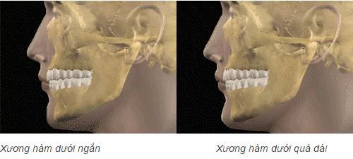 Phẫu thuật răng hàm mặt - thẩm mỹ tối đa, nhanh chóng và triệt để 2
