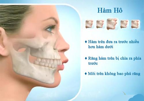 Những điều cần biết về răng hô
