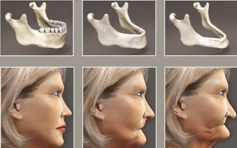 Tiêu xương chân răng - nguyên nhân, tác hại và cách khắc phụcTrường hợp bị mất răng lâu ngày dẫn tới tiêu xương răng mà việc trồng lại răng cũng không khắc phục triệt để được-1