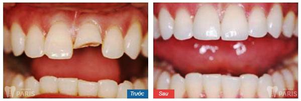 Khi nào cần trám răng thẩm mỹ