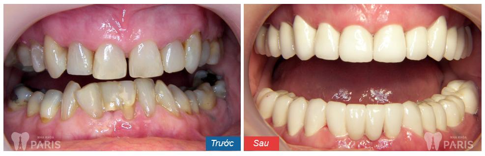 Răng sứ thẩm mỹ CT 5 chiều - Sức mạnh phục hình răng Hiệu Quả 7