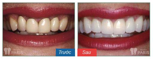 Bọc răng sứ giá bao nhiêu? – Bác sĩ nha khoa giải đáp 6