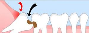 Răng khôn bị sâu có nên nhổ không?1
