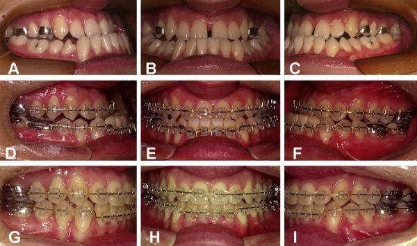 Sai lệch răng móm là gì, có mấy cách chữa trị triệt để? 5