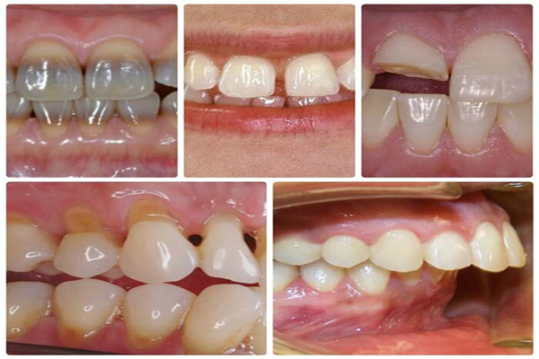 Răng sứ thẩm mỹ CT 5 chiều - Sức mạnh phục hình răng Hiệu Quả 2