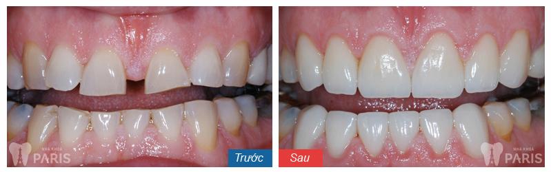Niềng răng thưa mất bao lâu là hoàn thành? 6