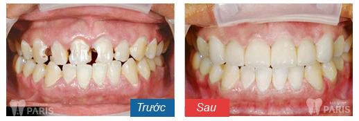 Răng sứ thẩm mỹ CT 5 chiều - Sức mạnh phục hình răng Hiệu Quả 9