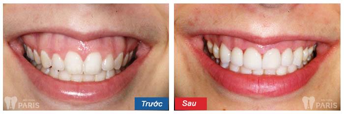 Phẫu thuật răng hàm mặt - thẩm mỹ tối đa, nhanh chóng và triệt để