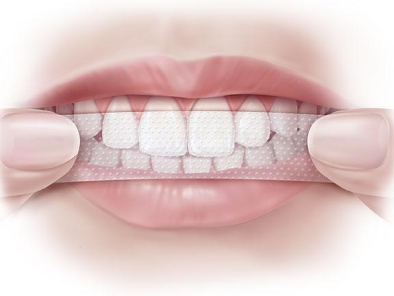 Tác dụng của miếng dán trắng răng NHẤT ĐỊNH phải biết!