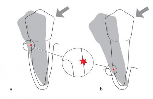 Tiêu xương chân răng - nguyên nhân, tác hại và cách khắc phục12