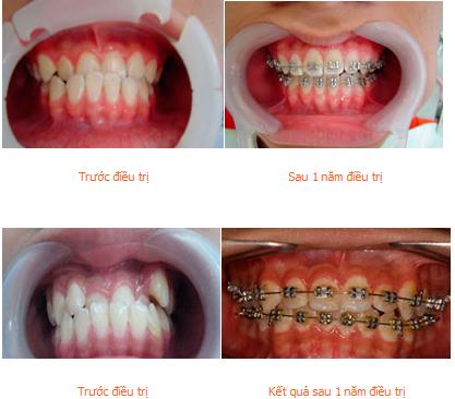 Sai lệch răng móm là gì, có mấy cách chữa trị triệt để? 4 1