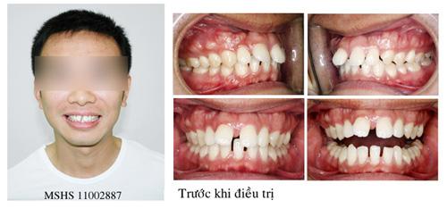 Răng hô là gì - biểu hiện và cách điều trị hiệu quả?1