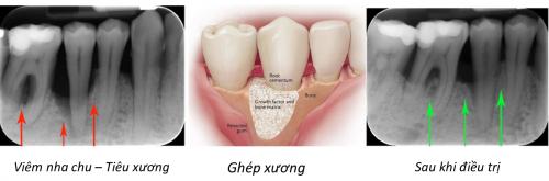 Tiêu xương chân răng - nguyên nhân, tác hại và cách khắc phụcTrường hợp bị mất răng lâu ngày dẫn tới tiêu xương răng mà việc trồng lại răng cũng không khắc phục triệt để được