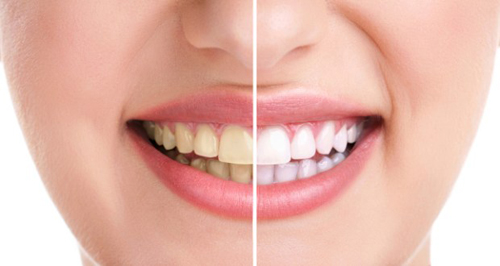 Tuyệt chiêu tẩy trắng răng vàng
