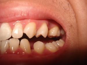 Chỉnh răng thưa ở đâu tốt và hiệu quả nhất hiện nay?2
