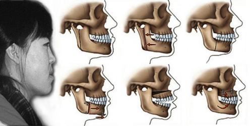 Điểm danh các nguyên nhân gây răng vẩu chủ yếu 342