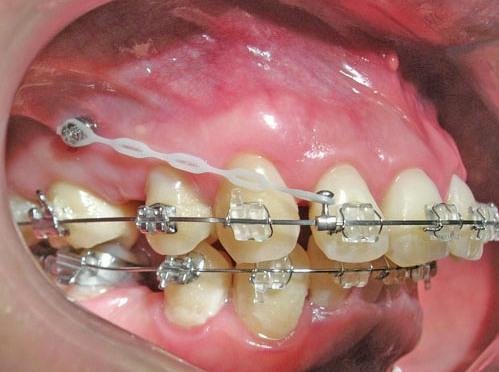 Tổng hợp các cách chữa răng thưa hiệu quả nhất3