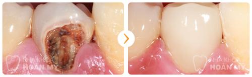 Bị sâu răng có chữa được không? 30