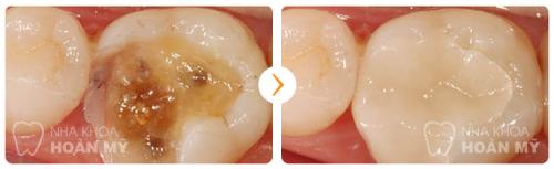Viêm tủy răng hàm chữa trị thế nào khỏi dứt, không tái phát? 3