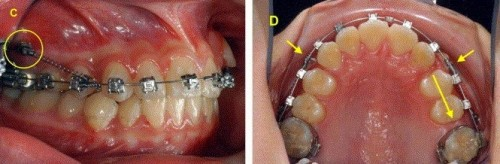 Điểm danh các nguyên nhân gây răng vẩu chủ yếu 2341