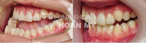 Chi phí niềng răng móm bao nhiêu tiền?