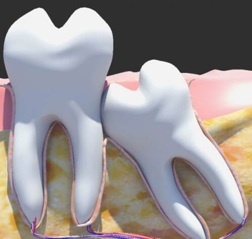 Răng số 8 lung lay phải làm sao