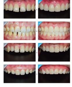 Chỉnh răng thưa ở đâu tốt và hiệu quả nhất hiện nay?1