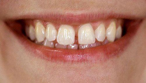Giải đáp thắc mắc: Trám răng cửa bao nhiêu tiền?