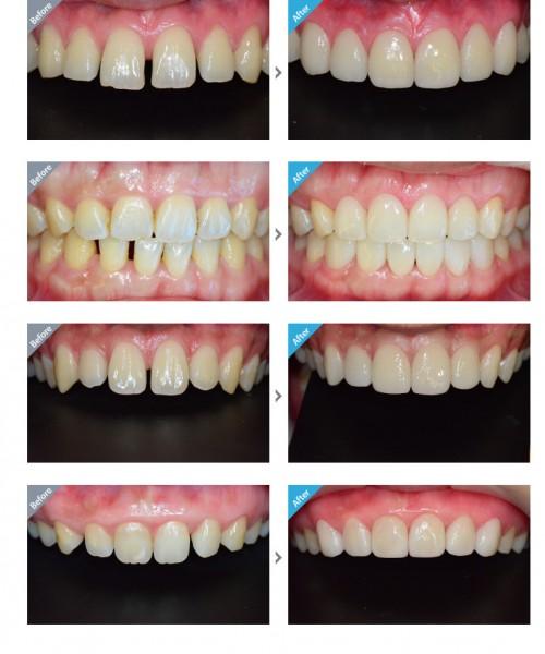 Tổng hợp các cách chữa răng thưa hiệu quả nhất12