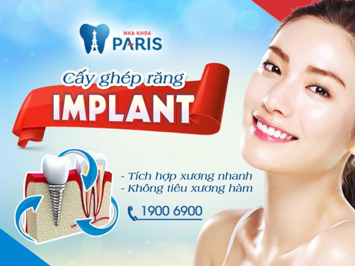 Cấy implant ở đâu tốt nhất? - Giải đáp từ chuyên gia 3