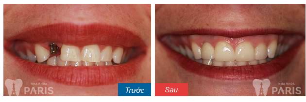 Cấy răng Implant 4S - Công nghệ trồng răng bền chắc gấp 10 lần 5