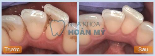 Lấy cao răng để làm gì, tác dụng ra sao?11