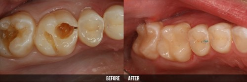 Răng sữa bị sâu có nên hàn lại cho trẻ không? 2