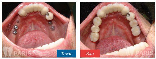 Cấy răng Implant 4S - Công nghệ trồng răng bền chắc gấp 10 lần 9