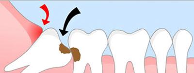 Tất cả thông tin về tình trạng sâu răng hàm bạn CẦN BIẾT 2