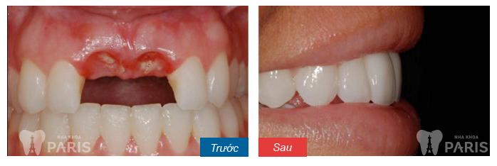 Cấy răng Implant 4S - Công nghệ trồng răng bền chắc gấp 10 lần 6