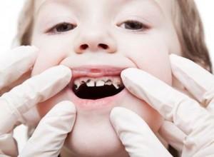 Hàm răng sữa gồm những răng nào? 431