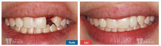 Cấy răng Implant 4S - Công nghệ trồng răng bền chắc gấp 10 lần 7