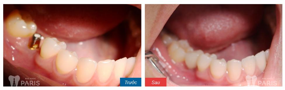 Cấy răng Implant 4S - Công nghệ trồng răng bền chắc gấp 10 lần 8