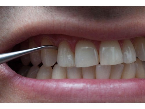 Các loại bỏ mảng bám răng tại nhà