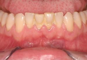 Lấy cao răng có đau không và hội chứng ê buốt