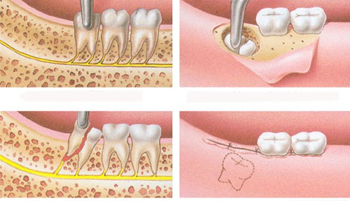 """Bác sỹ tư vấn """"Nhổ răng khôn có nguy hiểm không?"""""""
