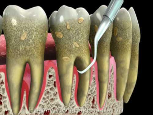 Tổng hợp về cạo vôi răng là gì, thực hiện thế nào?3