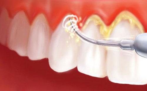 Kết quả hình ảnh cho Mảng bám răng là nguyên nhân chính