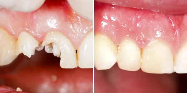 Chữa sứt răng bằng cách nào giúp phục hình hoàn hảo nhất? 1