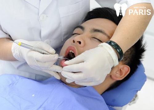 Lấy cao răng mất bao lâu? Quy trình như thế nào?