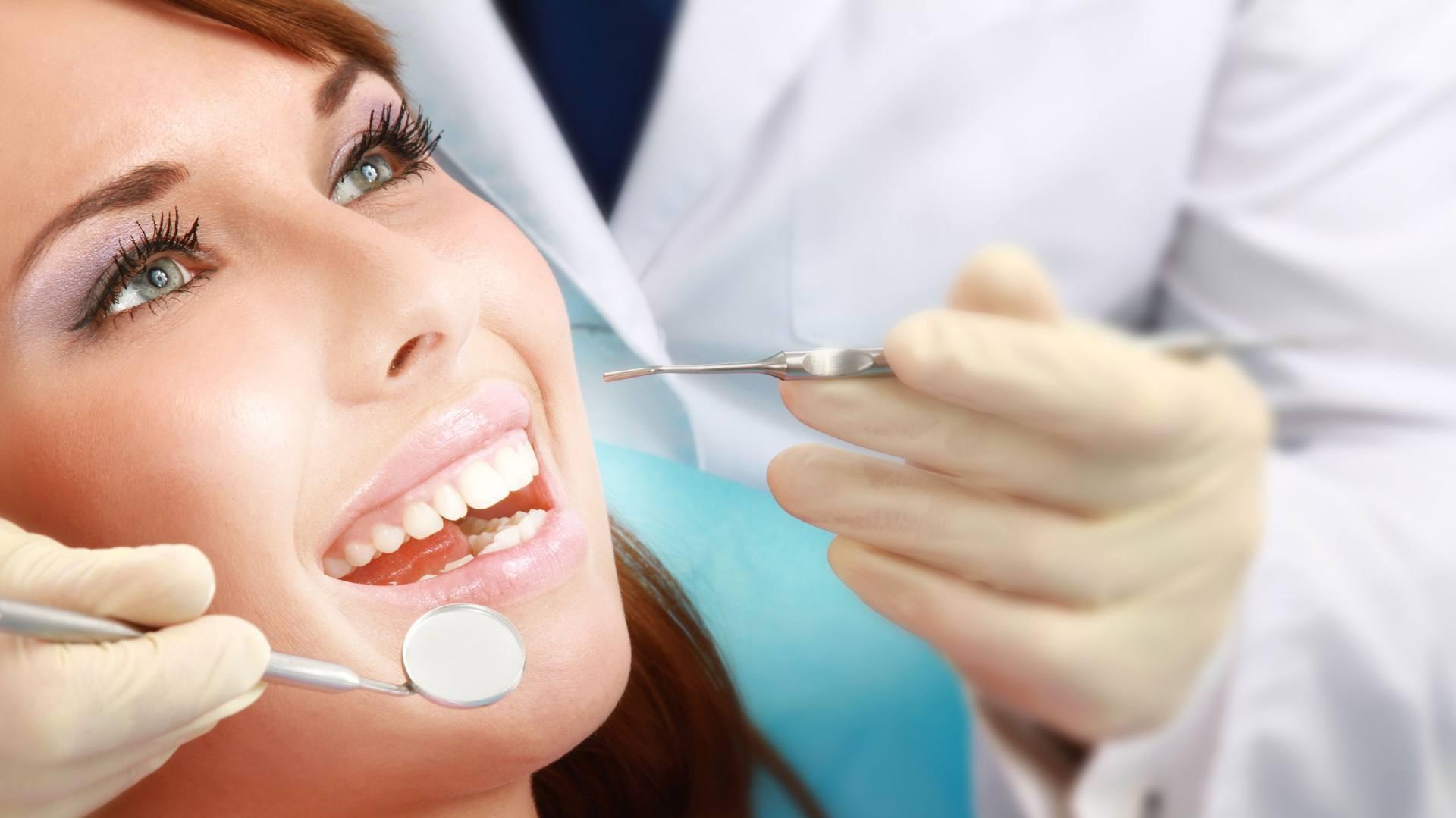Gợi ý lấy cao răng ở đâu tốt và an toàn nhất! 1