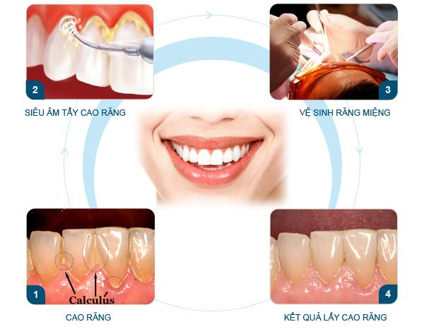 Quy trình lấy cao răng chuẩn an toàn nhất hiện nay 2