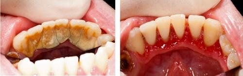 """Ý kiến chuyên gia """"Lấy cao răng có ảnh hưởng gì không?"""""""